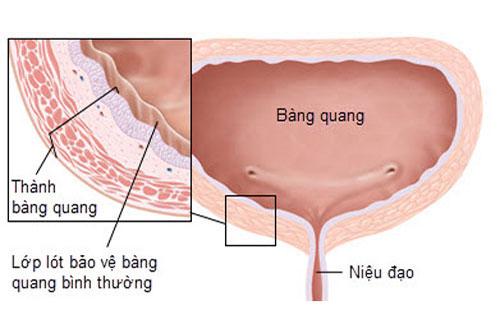 mac-benh-phi-dai-tuyen-tien-liet-do-nhung-nguyen-nhan-nao-2