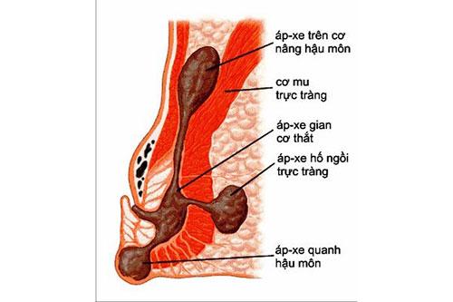 nhung-bien-chung-thuong-xay-ra-cua-benh-apxe-hau-mon-1