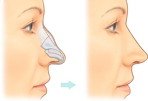 mũi diều hâu