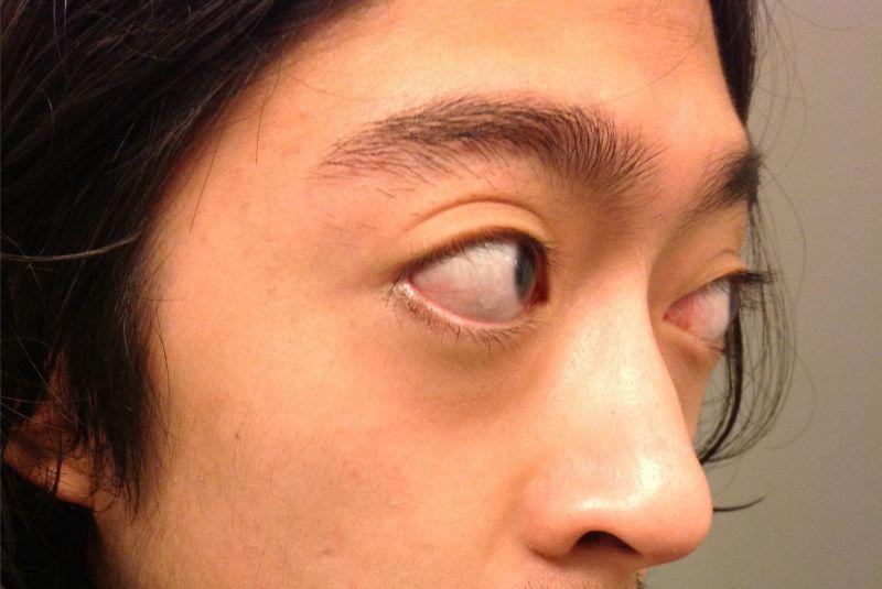 Mắt lồi và cách khắc phục