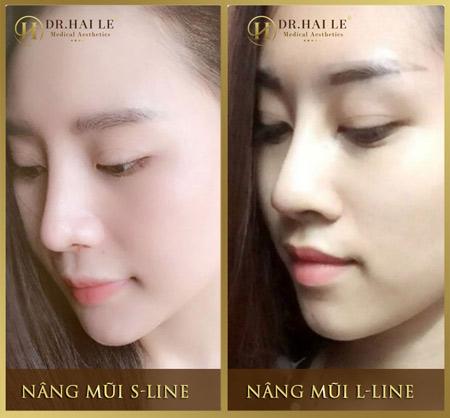 So sánh nâng mũi L line và S line