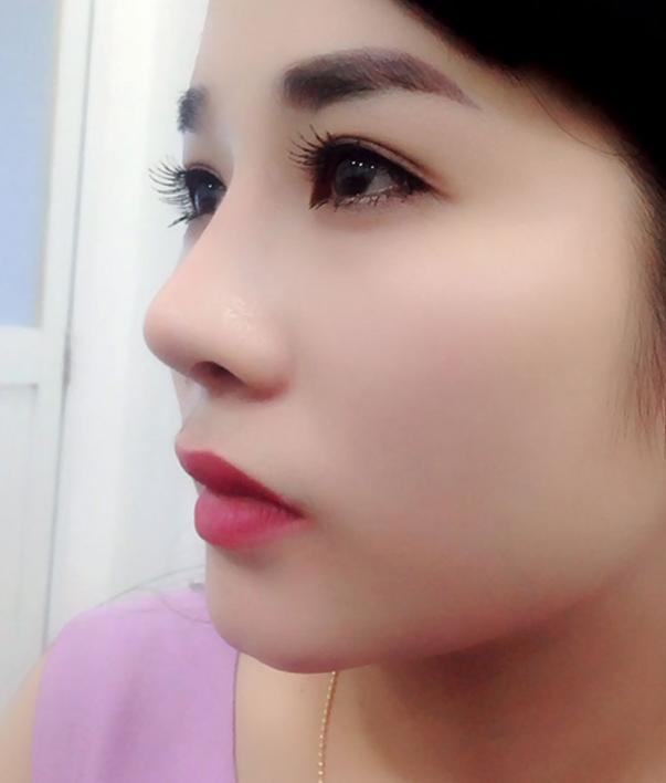 Nâng mũi bao lâu thì hết bầm tím